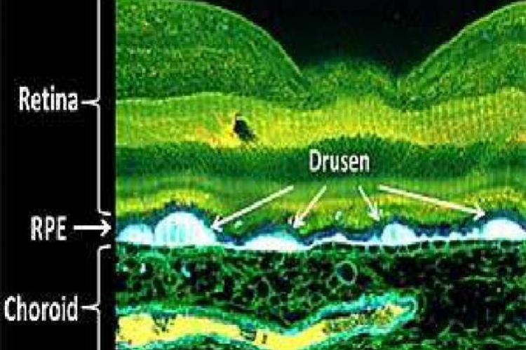 The accumulation of extracellular deposits (drusen) between the RPE and the choroid is known to occur in AMD