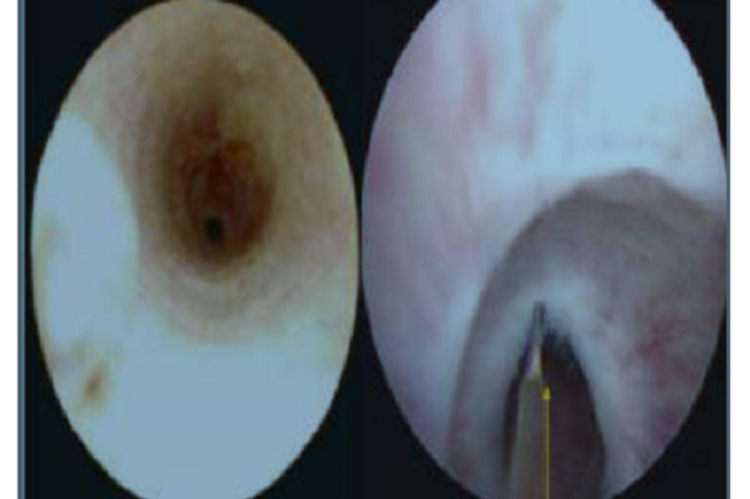 Endoscopic Management of Stricture Urethra and their Outcome. A Study of 80 Cases at Rural Medical College Hospital