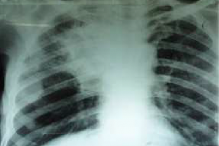 Chest X Ray of the patient showing mass lesion at the right lung.