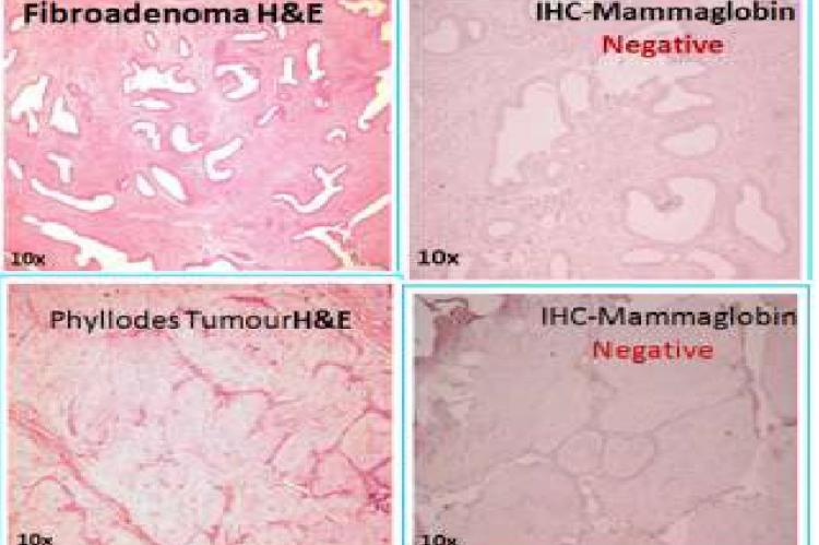 H&E and IHC of fibroadenoma and phyllodes showing negative MG immunostaining