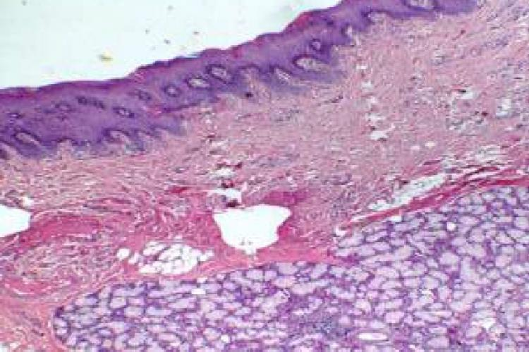 Photomicrograph (low power view)] excised tissue specimen showing parakeratinised stratified squamous epithelium, dense connective tissue and numerous minor salivary gland ]