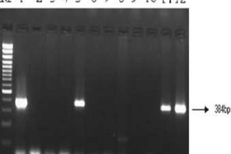 Direct detection of eaeA gene of enteropathogenic and enterohemorrhagic E. coli in stool samples by PCR. Lane M, 100 bp DNA ladder (Genetix); Lane 1, Reference strain EDL 933; Lane 2, Negative control strain; Lanes 3‑12, Stool 91 to Stool 100; Lanes 5, 11 and 12, Stool samples positive for eae genes.
