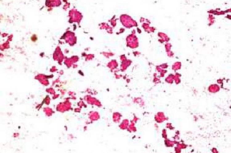 Hematoxylin and eosin stained cytosmears showing pleomorphic thyroid follicular cells in clusters, papillaroid pattern and tumor giant cells