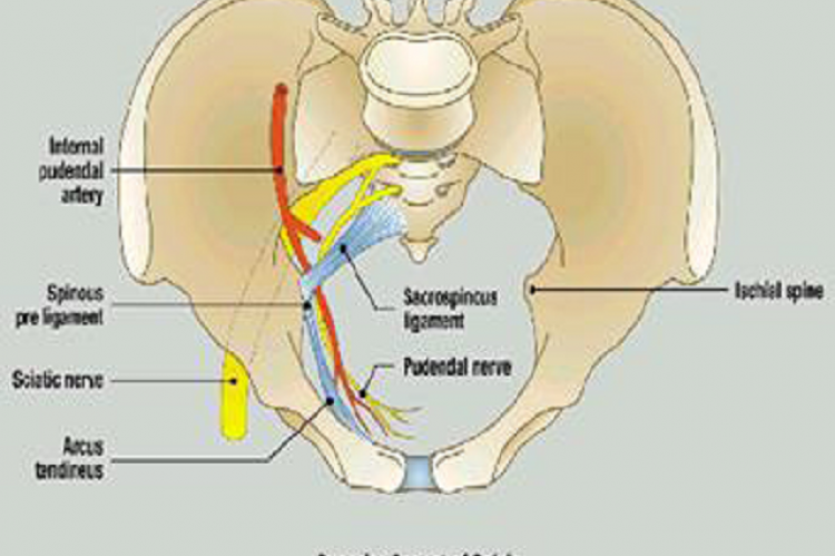 Anatomy of sacrospinous ligament Inclusion criteria