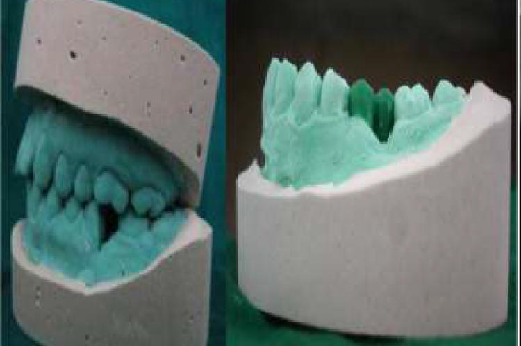 Diagnostic casts and wax-up