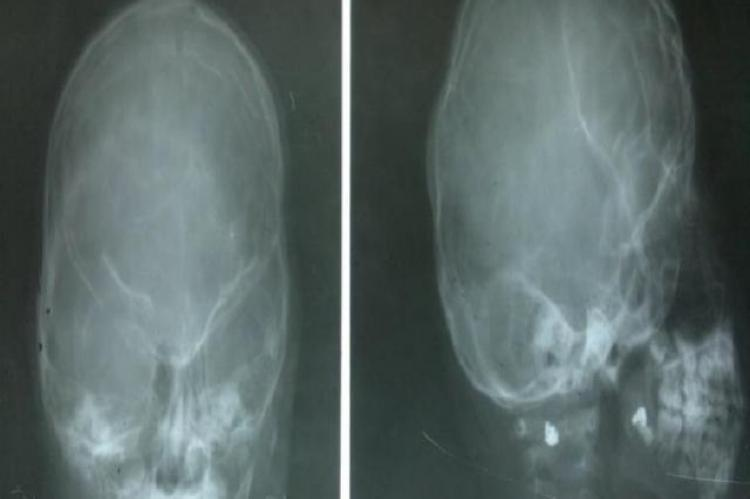 Plain X-ray of skull (A.P and Lat view): Silver beaten appearance