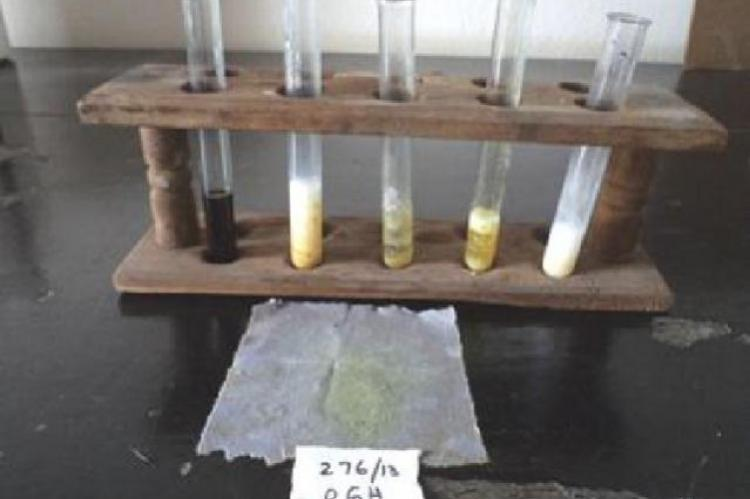 Showing biochemical analysis-mixed stones.