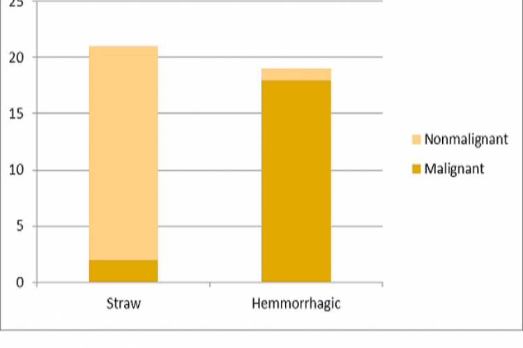 Showing Hemmorrhagic pleural effusion with low ADA value to be associated with Malignancy.